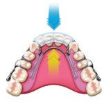 Nevidni zobni aparat – revolucionarni ortodontski pripomoček